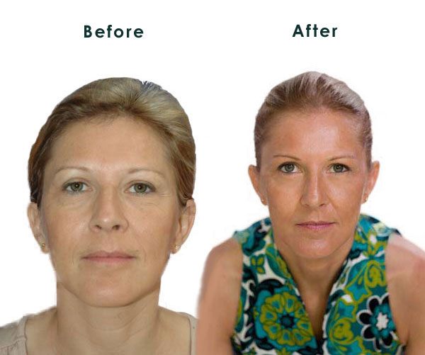 Before-after Facial Rejuvenation Acupressure
